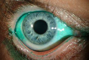 keratoconjunctivitis sicca dry eye
